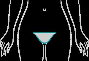 my-brazilian-wax-_0003s_0000_Bikini-Line